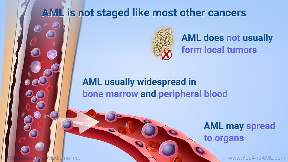 AML is not staged like most other cancers