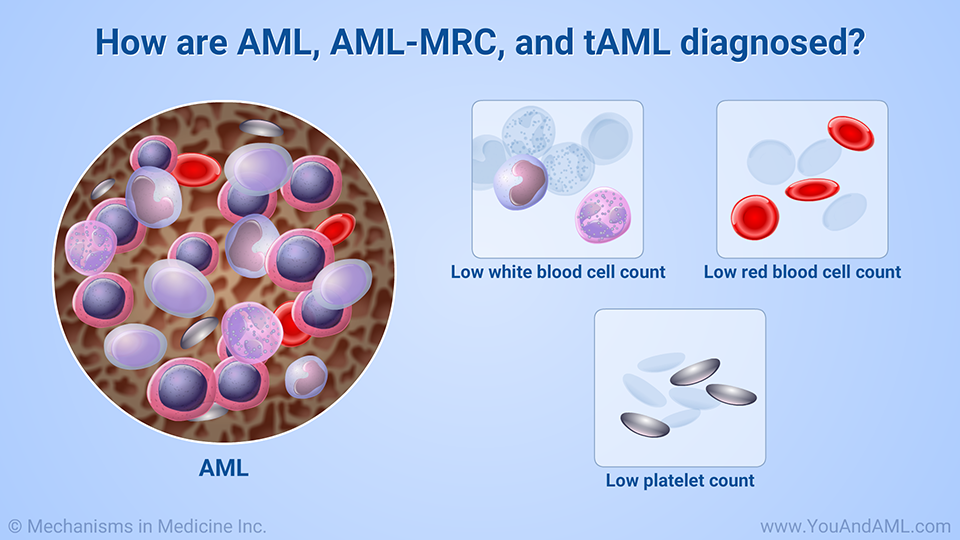 How are AML, AML-MRC, and tAML diagnosed?