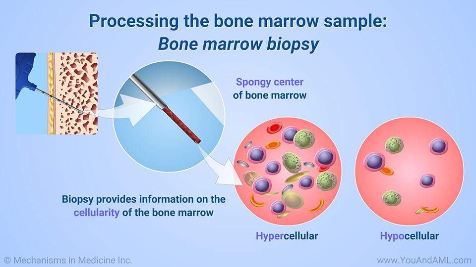 Processing the bone marrow sample: Bone marrow biopsy