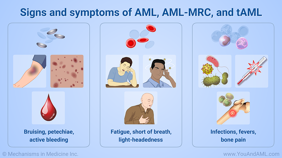 Signs and symptoms of AML, AML-MRC, and tAML
