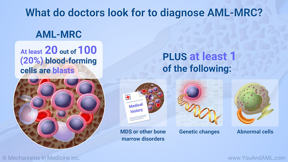 What do doctors look for to diagnose AML-MRC?