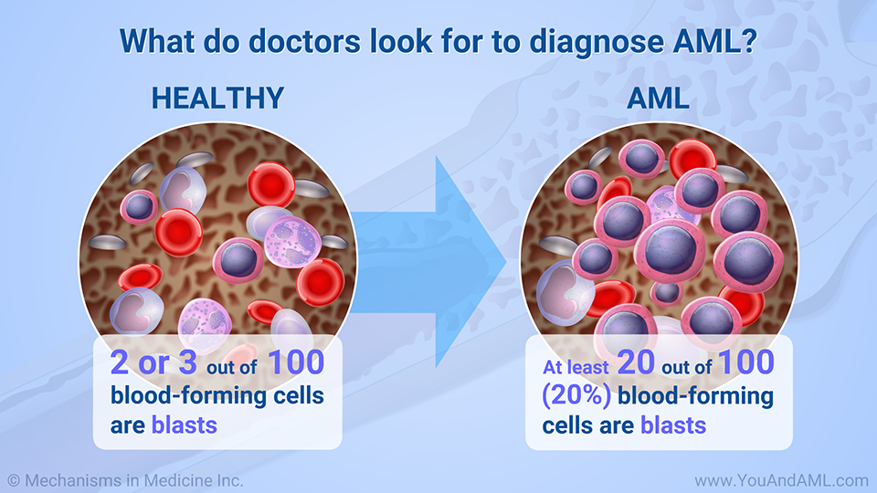 What do doctors look for to diagnose AML?