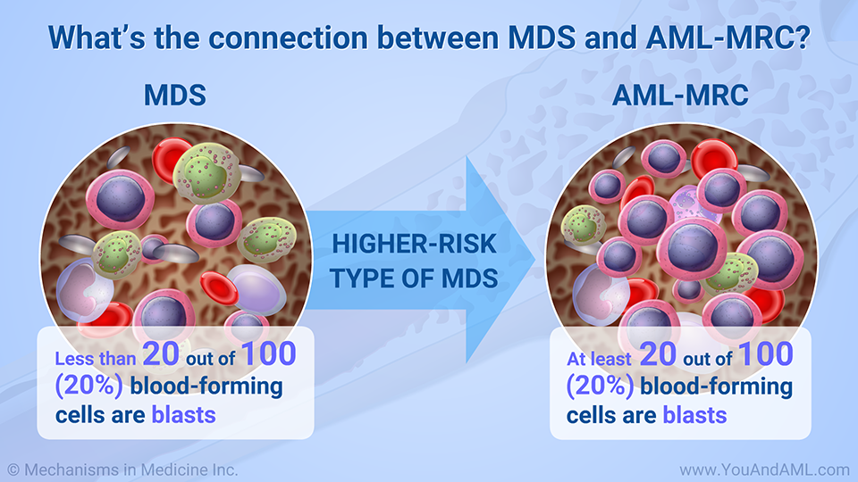 What's the connection between MDS and AML-MRC?