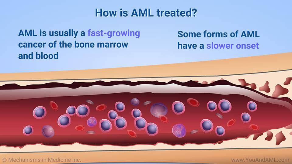 How is AML treated?