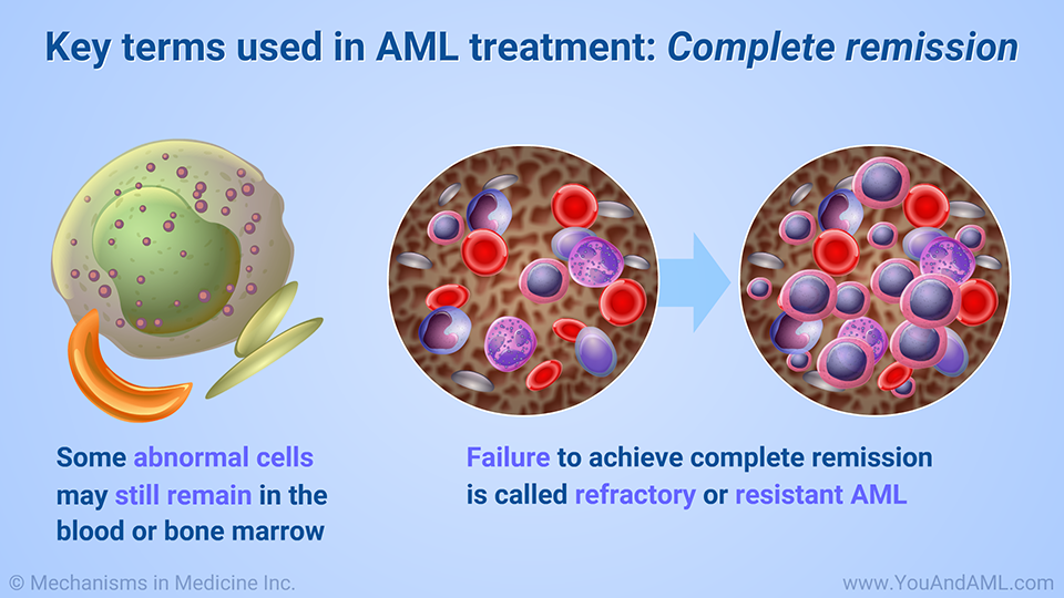 Key terms used in AML treatment: Complete remission
