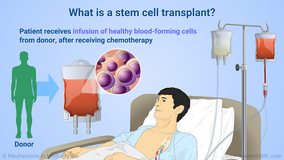 What is a stem cell transplant?