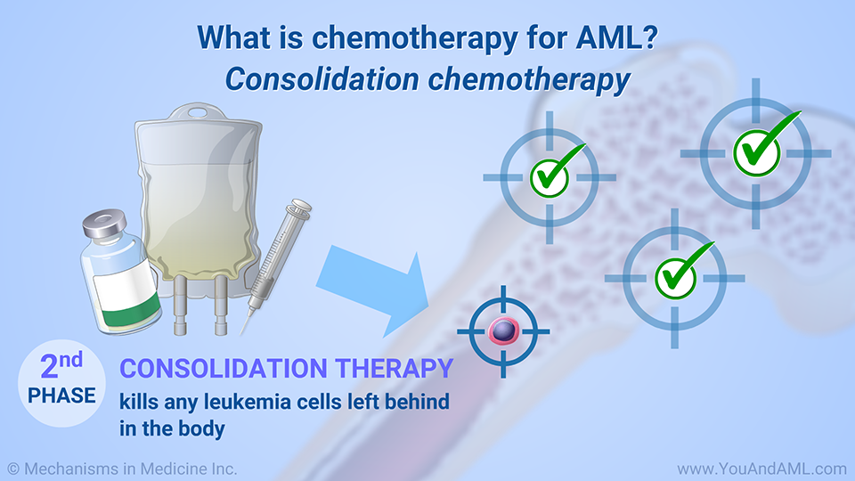 What is chemotherapy for AML? Consolidation chemotherapy