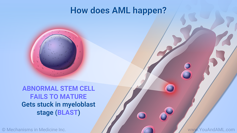 How does AML happen?