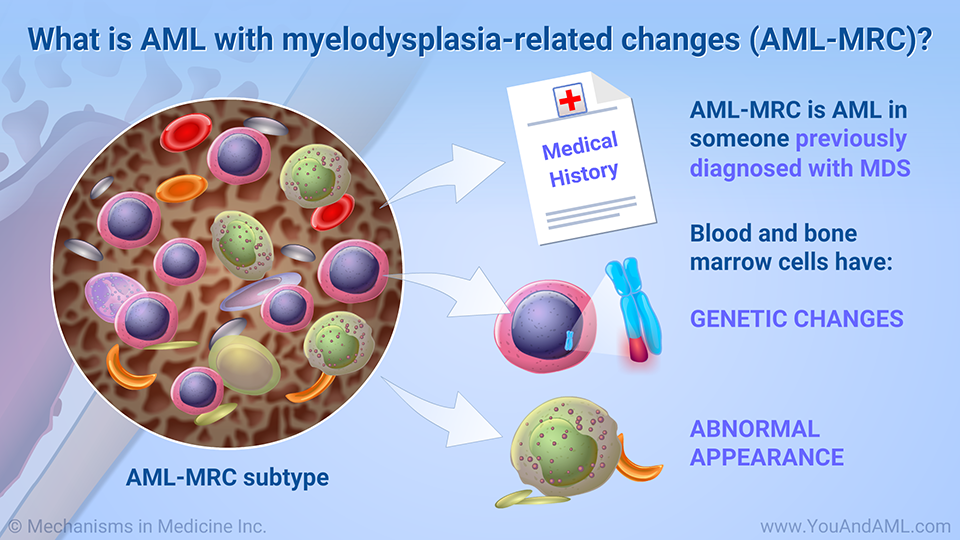 What is AML with myelodysplasia-related changes (AML-MRC)? (Continued)