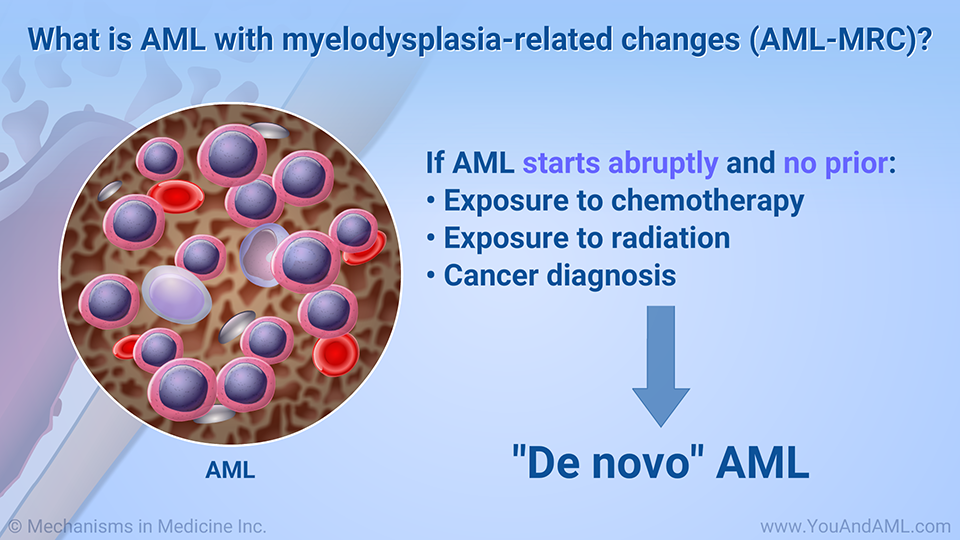 What is AML with myelodysplasia-related changes (AML-MRC)?