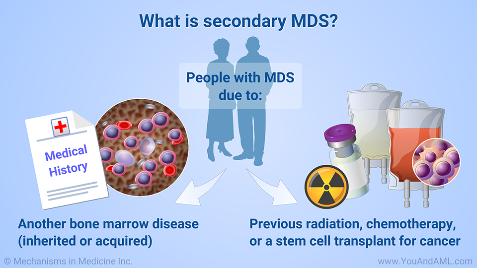 What is secondary MDS?