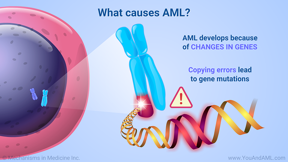 What causes AML?