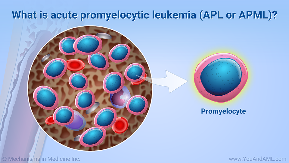 What is acute promyelocytic leukemia (APL or APML)?