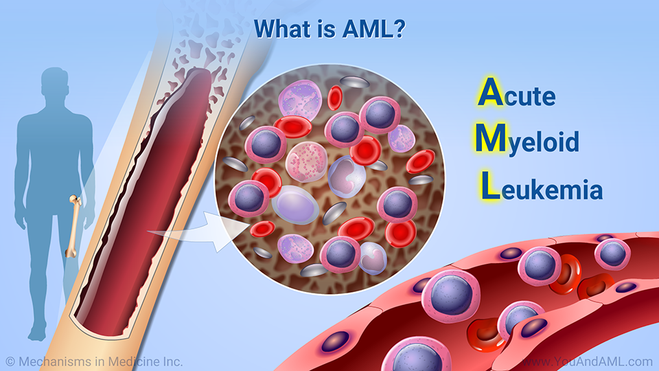 What is AML?